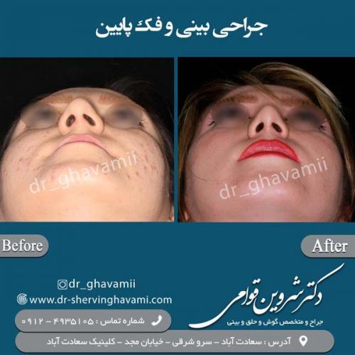 جراحی-بینی-7