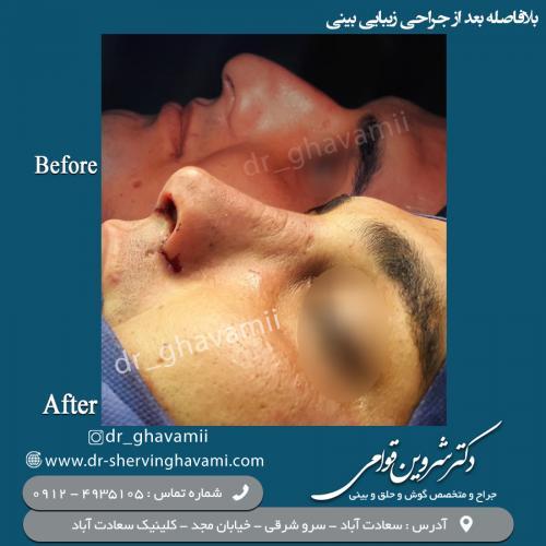 جراحی بینی 75