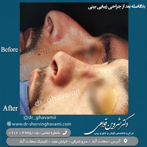 جراحی بینی 77