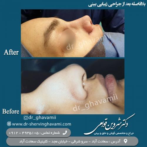 جراحی بینی 84